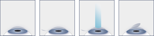 LASIK eye surgery procedure diagram with Kerry Solomon in South Carolina