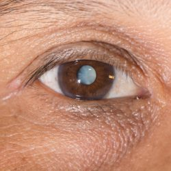 Laser cataract surgery in Charleston, SC